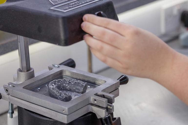 Les aligneurs transparents pour l'orthodontie sont l'un des premiers cas d'utilisation de l'impression 3D pour la production de masse.