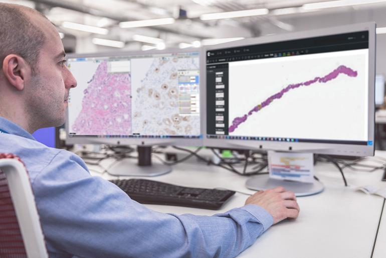 Philips développe des outils d'évaluation basés sur l'IA pour aider les pathologistes à améliorer la vitesse et la précision des diagnostics de cancer.